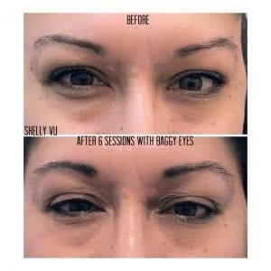 wrinkle-reduction_7691-min